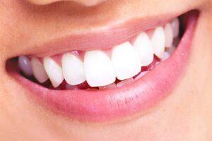 mejor blanqueador dental
