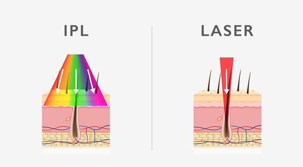 diferencia entre ipl y depilación láser