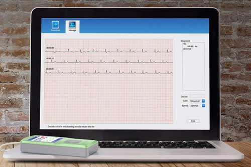 electrocardiógrafo portátil
