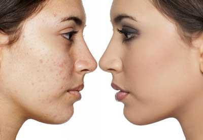 microdermoabrasión antes y después